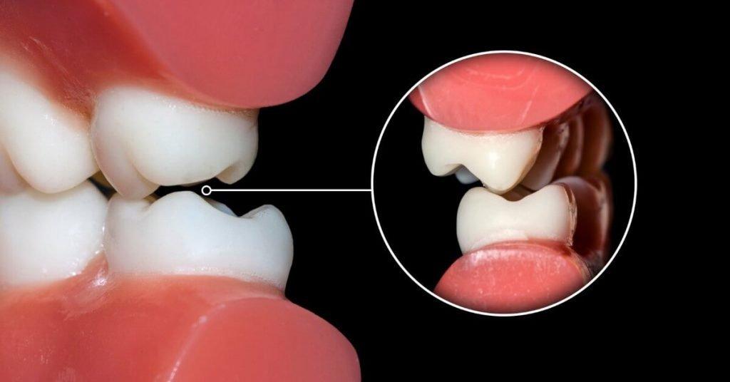 La Malocclusione dentaria e la postura