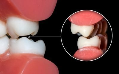 Odontoiatria Posturale e Malocclusione