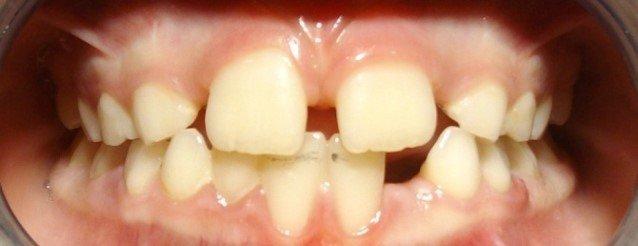 L'Odontoiatria Posturale la Malocclusione e la Postura