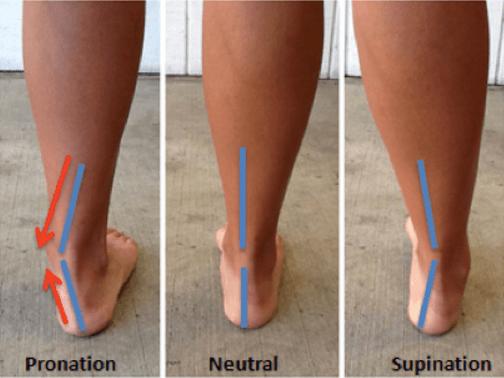 Tendine e Caviglia caso Pronazione, Neutrale, Supinazione
