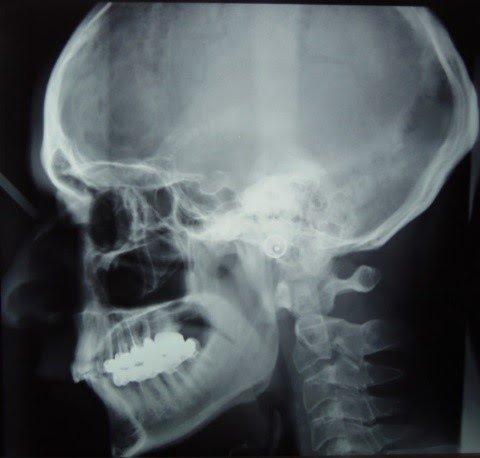 RX Cranio laterale si evidenzia perdita della lordosi cervicale.