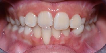 Esempio di maocclusione dentaria