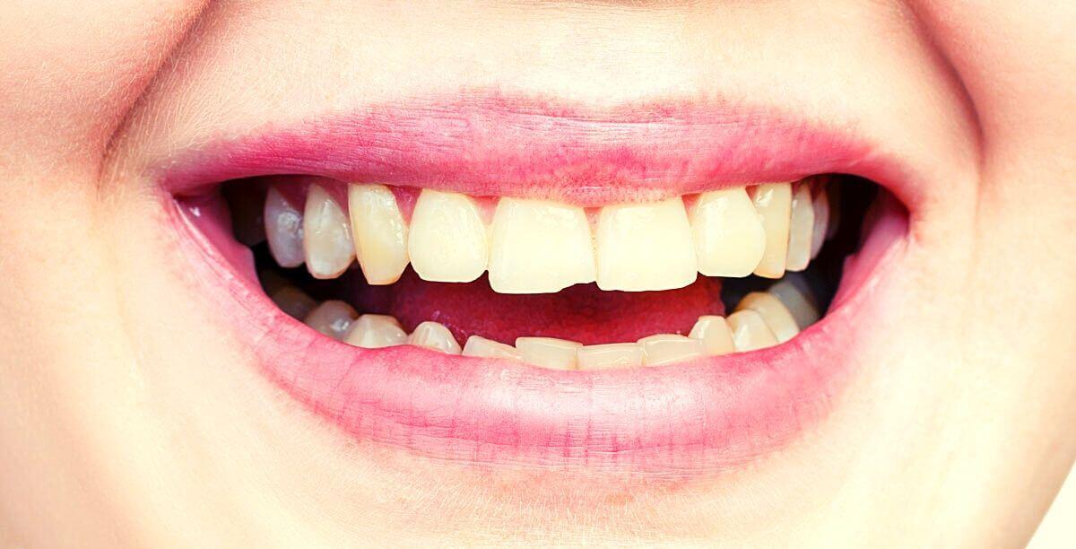 Usura delle superfici occlusali degli elementi dentari dovute ad eccessivo sfregamento